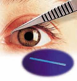 Plug Lacrimal Termodinâmico Smart Plug